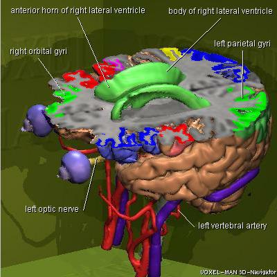 Voxel Man 3d Navigator Brain And Skull