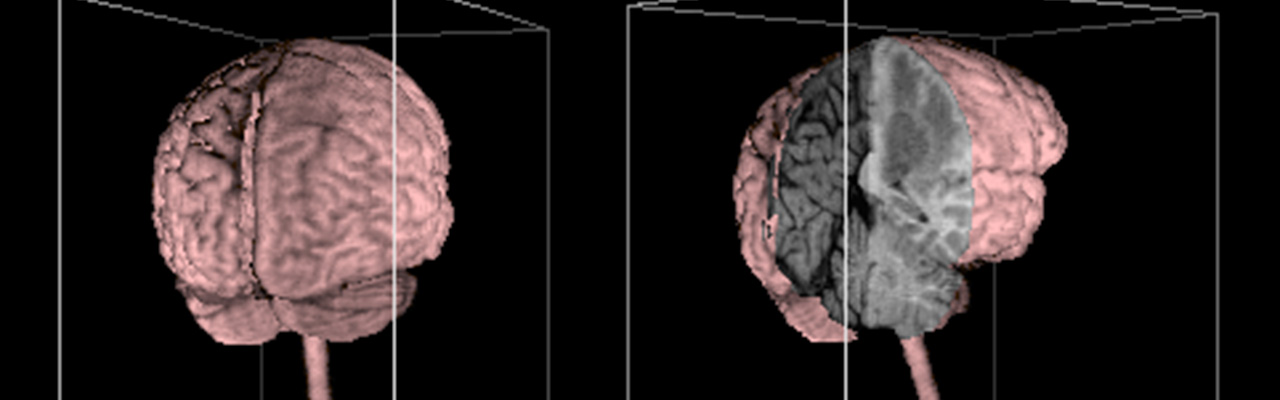 First 3D Reconstruction of the Brain (1987)