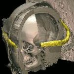 Crown of justification of the Virtual Mummy
