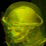 Head of the Virtual Mummy in red/green stereo