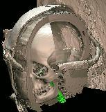 Fixation stick of the Virtual Mummy