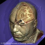 Virtual dissection of the Visible Humans's head