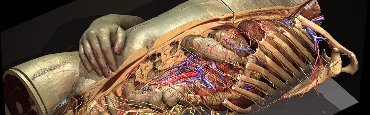 Torso and Inner Organs of the Visible Human (1998-2003)