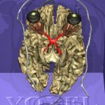 White matter of the Visible Human's brain in a basal view